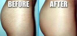 Laser Surgery: Laser Surgery Remove Bio Coconut Oil ...